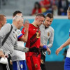 6 كسور في وجه لاعب بلجيكا